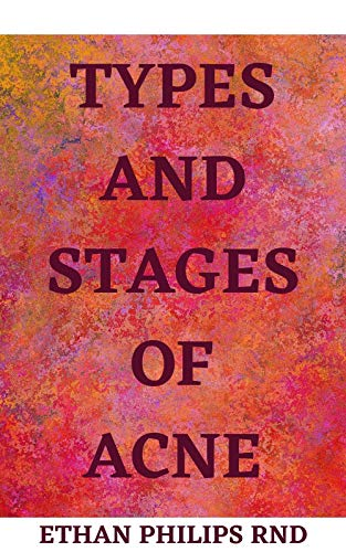 TYPES AND STAGES OF ACNE: Aсnе is Different At Dіffеrеnt Lіfе...